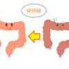 家庭の医学 便移植で腸内フローラが改善する。