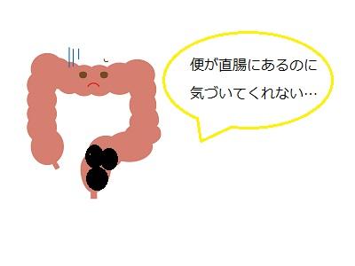 直腸型便秘2