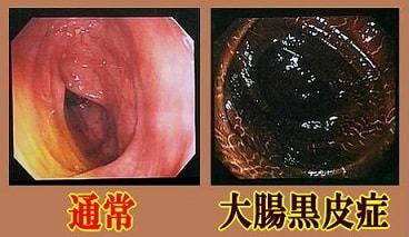 大腸黒皮症2