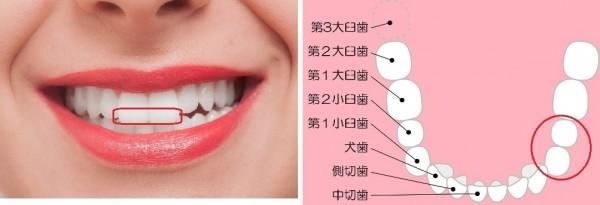 歯牙着色1