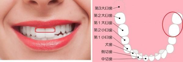 歯牙着色2